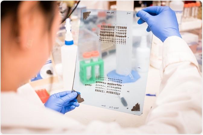 how to analyze western blot data